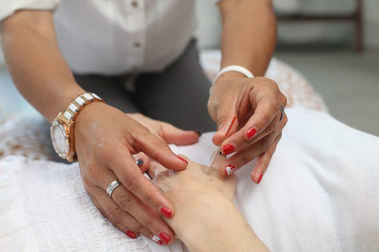 acupunctuur chinees